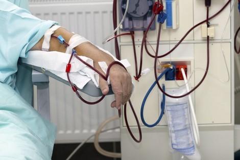 صورة 4000 حالة قصور كلوي سنويا و 10آلاف مريض ينتظرون عمليات الزرع